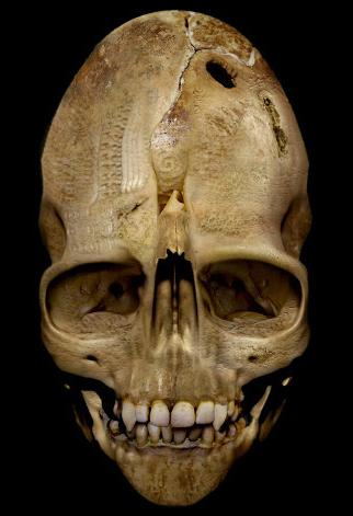 Andover_Vampire_Skull