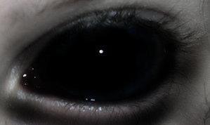 BlackEyes