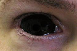 Black_Eyes
